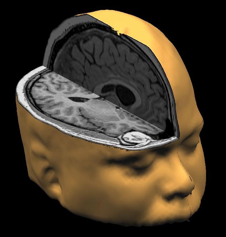 Memory brain scan