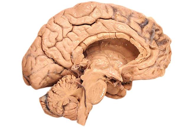 The Brain for Deja Vu