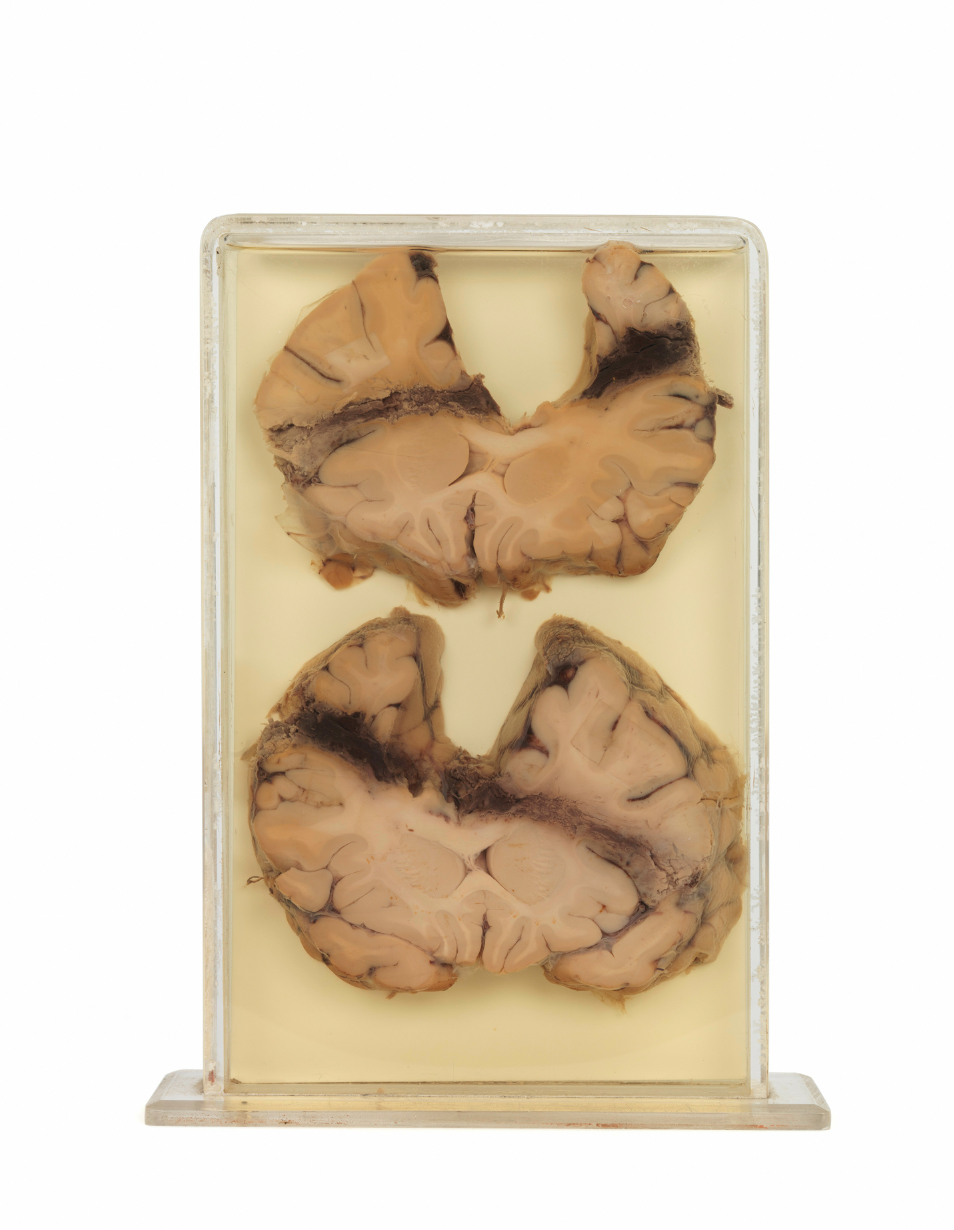 Preserved brain with the scar from a suicidal gunshot.