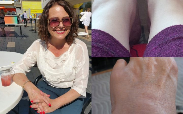 It can be a matter of days between Dawn feeling able to have a catch up with friends and being bed bound due to pain (pictures taken 3 days apart)