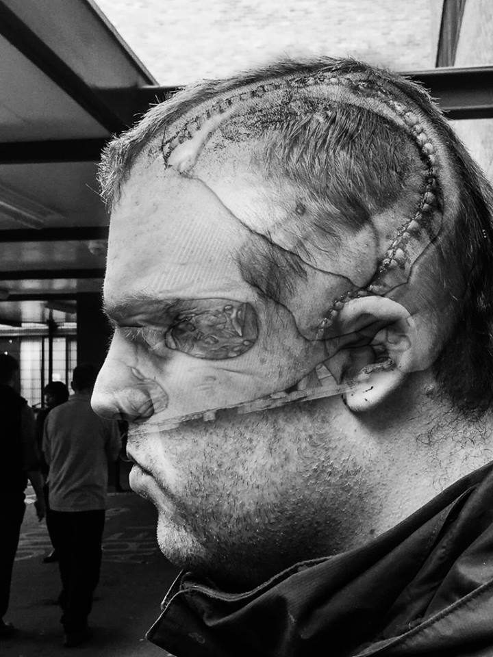 Black and white Self portrait of Peter, side profile after his cranioplasty with an xray of his brain edited into the photo.