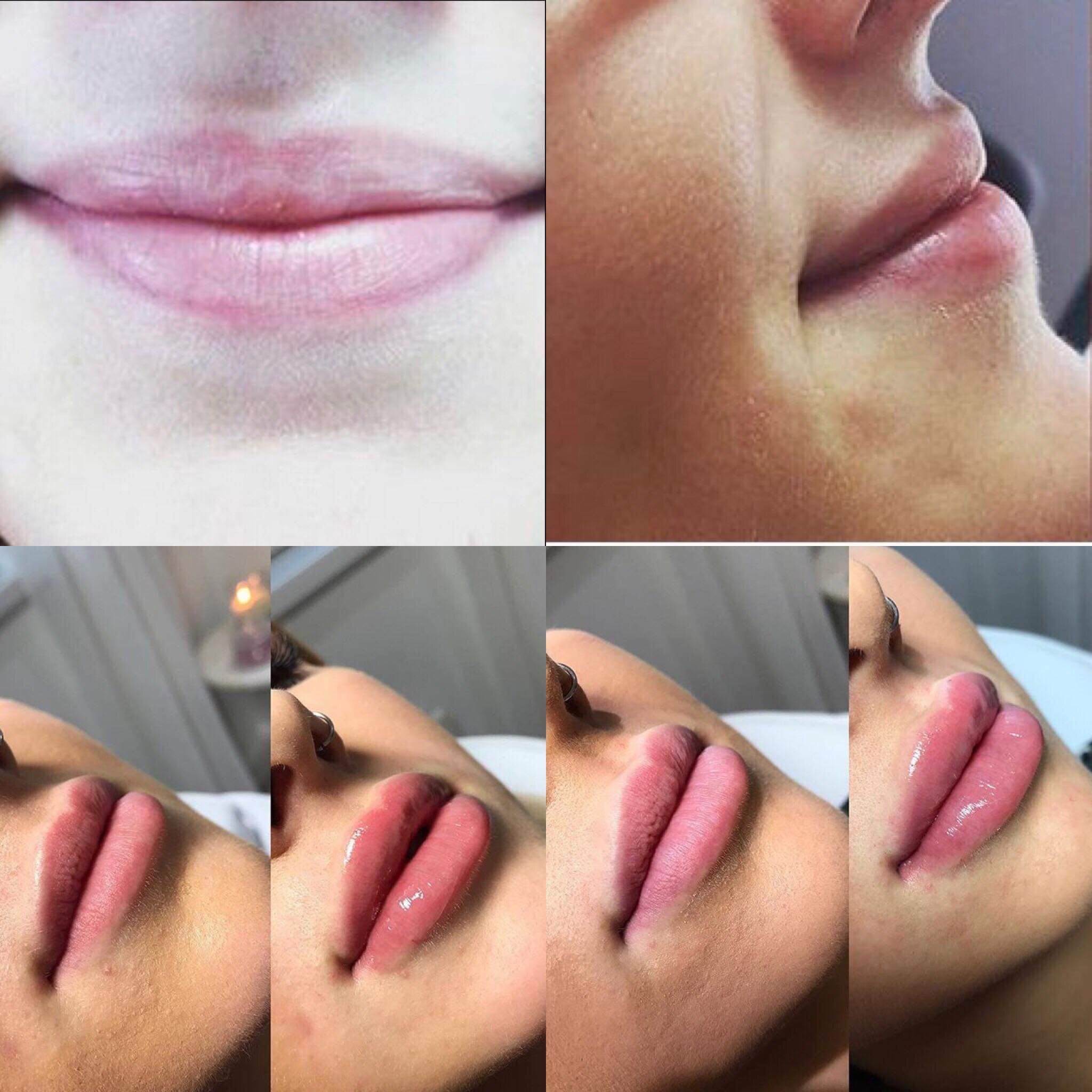 Before and after images of Bethan's lips up close showing how the lip-filler has defined and plumped her lips.