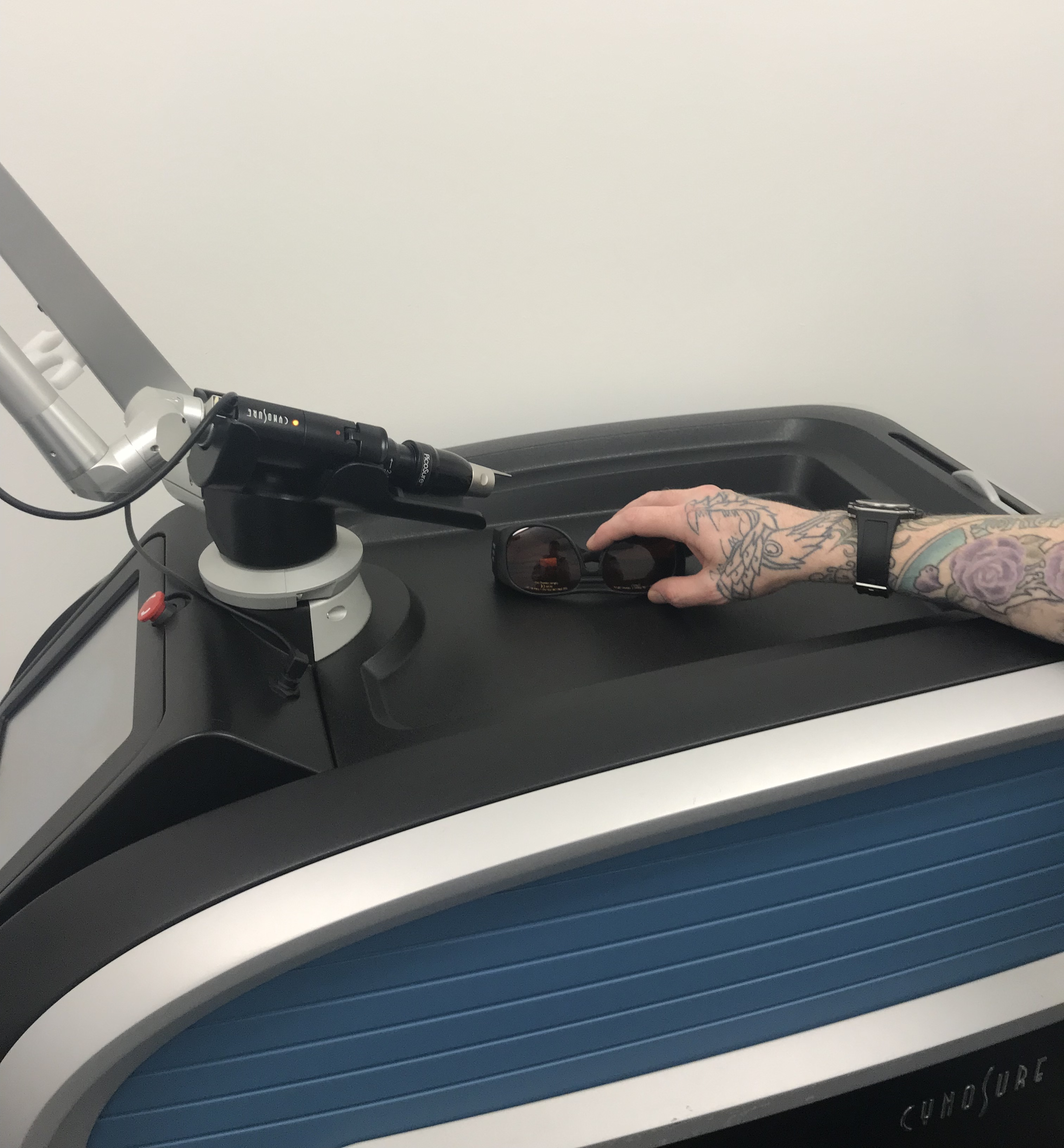 Tattoo removal machine, a laser used to remove the tattoo from the skin.