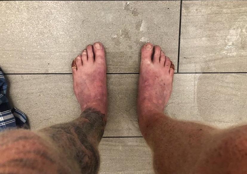 Bruised, cut and battered feet. Russell had trouble running on his feet as they were so sore.